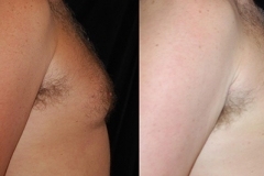 Boston male breast reduction