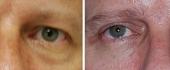 male-eyelid-2