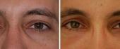 male-eyelid-3