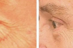Male eyelid rejuvenation