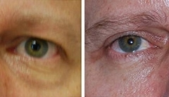 Male eyelid lift