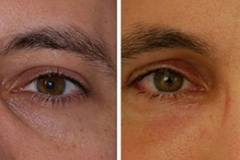 Eyelid surgery for men