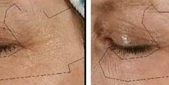 Remove Eyelid Wrinkles