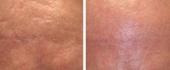 scar-removal-2