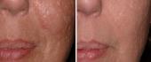 scar-removal-3