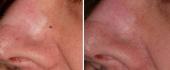 scar-removal-4