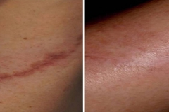 Boston scar removal