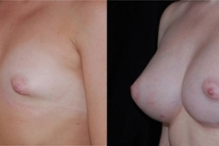 Boston Tuberous Breast Correction