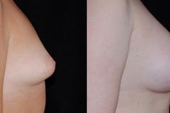 Boston Tuberous Breast Surgeon