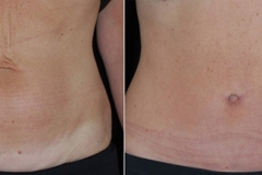 Boston abdominoplasty