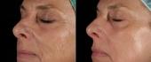 laser-resurface-6