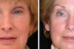 Boston laser skin resurfacing