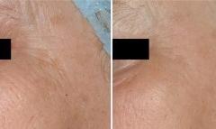 Laser wrinkle removal