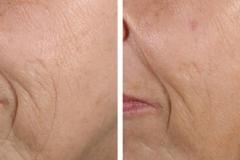 Laser wrinkle treatments