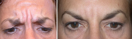Botox before and after correction of frown lines, patient is trying to frown and the second photo