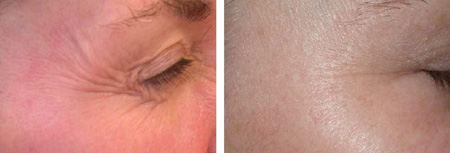 Before and after crow's feet removal with Botox