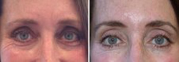 Before and after Botox® brow lift and removal of Crow's feet