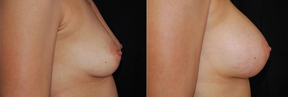 Before and after sub glandular breast augmentation with 350 cc gummy bear implants
