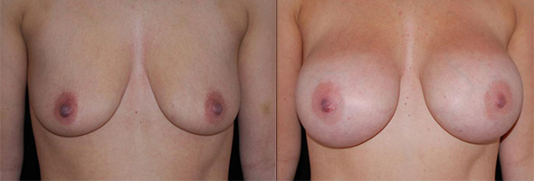 Breasts before and after breast augmentation in patient who plans to breast-feed in the future