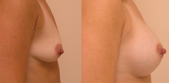 Before and after breast augmentation in patient who plans to breast feed in the future