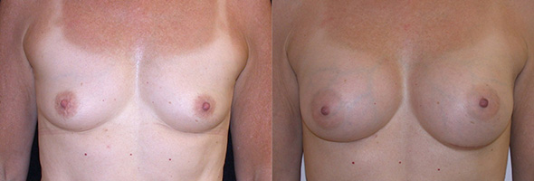 Breasts before and after 250 cc gummy bear breast implants for a normal natural breast look