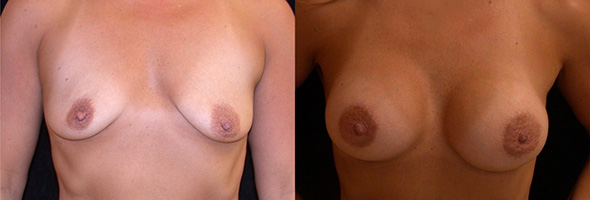 Before and after sub glandular breast implants for normal breast size after breastfeeding