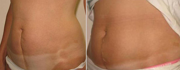 Before and after C-section scar removal 3 weeks post op