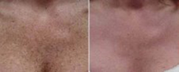Before and after décolletage rejuvenation with IPL or photo rejuvenation to remove Brown spots red spots, wrinkles and aging changes