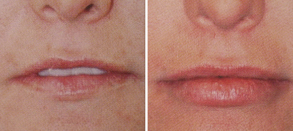 Before and after lip augmentation with Juvederm® dermal filler injection upper and lower lip