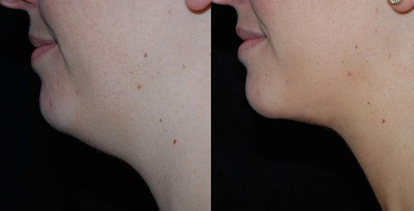 Neck before and after removal of female double chin with laser liposuction