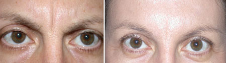 Before and after Dysport® treatment for frown lines
