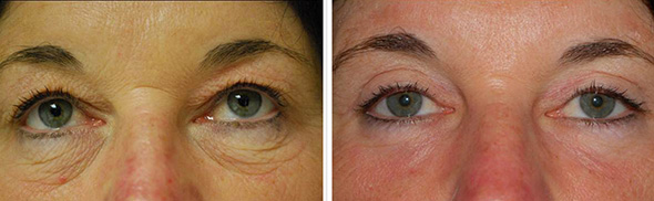 Eyes before and after laser blepharoplasty and laser resurfacing lower eyelids
