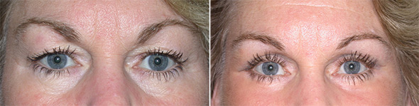 Before and after upper blepharoplasty to remove eye hoods