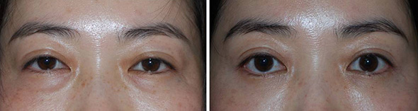 Before and after Asian Blepharoplasty to remove lower bags and upper eyelid fat preserving the double fold