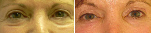 Eyes before and after removal of dark circles under eyes with transconjunctival blepharoplasty, arcus release and fat grafting