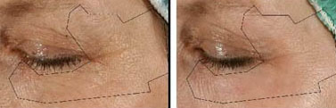 Before and after removal of eyelid wrinkles with laser resurfacing