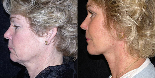 Facelift before and after to reveal a beautiful young natural face