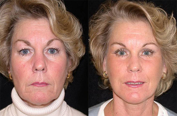 Before and after facelift, neck lift, and 4 lid blepharoplasty to reveal a beautiful young natural face