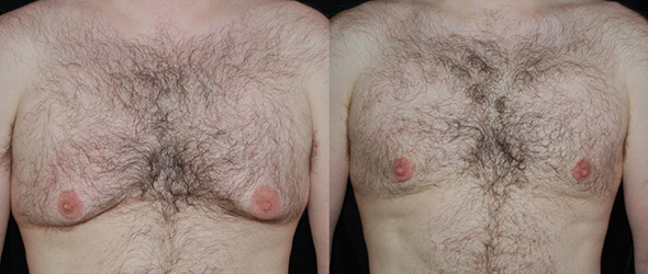 Before and after man boob removal with gynecomastia surgery, laser liposuction and breast gland resection