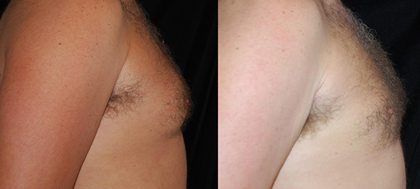 Before and after male gynecomastia surgery with liposuction only to get rid of man breasts