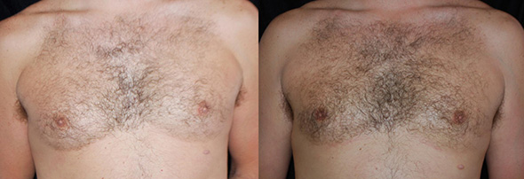 Man breasts before and after male breast liposuction to get rid of man boobs