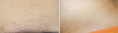 Before and after laser IPL hair removal bikini line