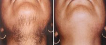 Before and after chin hair removal with laser IPL