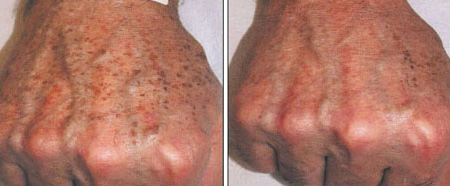 Before and after hand rejuvenation with IPL or photo rejuvenation treatments to remove pigment and aging changes