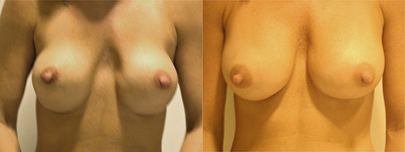 Before and after revision breast augmentation to correct double bubble deformity or bottoming out of breast implants
