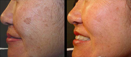 Before and after photo facial or IPL to remove pigment