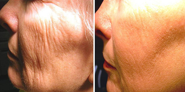 Face before and after fractional non-ablative, no down time laser resurfacing to remove wrinkles