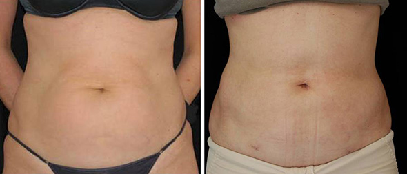 Before and after laser liposuction recovery at 12 days