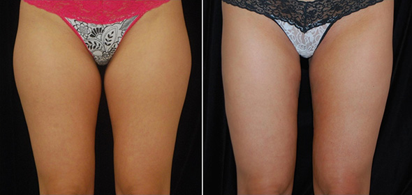Before and after laser liposuction thighs and hips