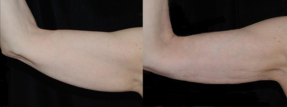 Before and after arm laser liposuction to remove jiggly arm fat